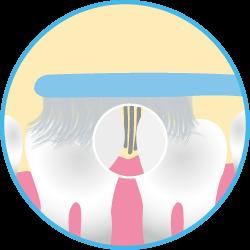 Четки за зъби Nano-B имат специална двуслойна структура на влакната