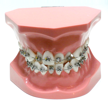 ORB2 modello ortodontico bracket - Gestor Cosmetics