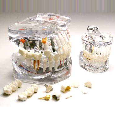 T09 modello denti estraibili 2