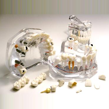 T09 modello denti estraibili3